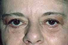 Blepharoplasty before and after Pictures - Eyelid Surgery 2