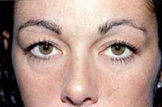 Blepharoplasty before and after Pictures - Eyelid Surgery 3