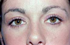 Blepharoplasty before and after Pictures - Eyelid Surgery 4