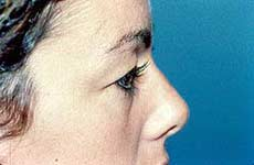 Blepharoplasty before and after Pictures - Eyelid Surgery 5