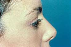 Blepharoplasty before and after Pictures - Eyelid Surgery 6