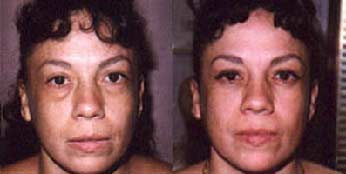 Blepharoplasty before and after Pictures - Eyelid Surgery 7