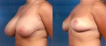 Breast Reduction Before and After Pictures 1