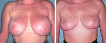 Breast Reduction Before and After Pictures 2