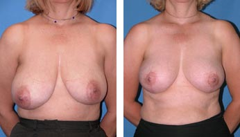 Breast Reduction Before and After Pictures 3