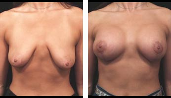 Breast Augmentation Before and After Picture 2
