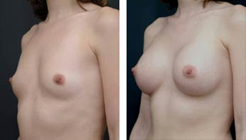 Breast Augmentation Before and After Picture 3