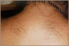 Laser Hair Removal Before and After Picture 5