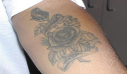 Laser Tattoo Removal Before and After Picture 3