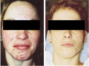 Microdermabrasion Before and After Pictures