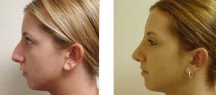 Rhinoplasty Before and After Pictures 1
