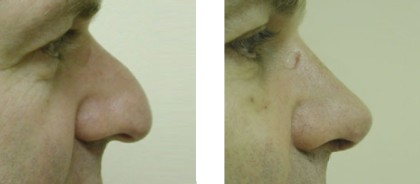Rhinoplasty Before and After Pictures 2
