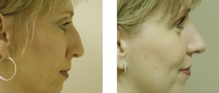 Rhinoplasty Before and After Pictures 3