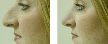 Rhinoplasty Before and After Pictures 4