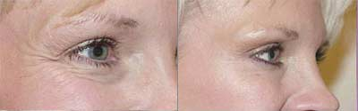 Botox Before and After Pictures 2