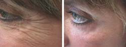 Botox Before and After Pictures 3