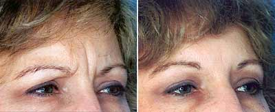 Botox Before and After Pictures 4