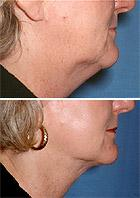 Facelift Before and After Pictures