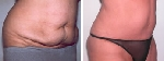 Liposuction Before and After Pictures